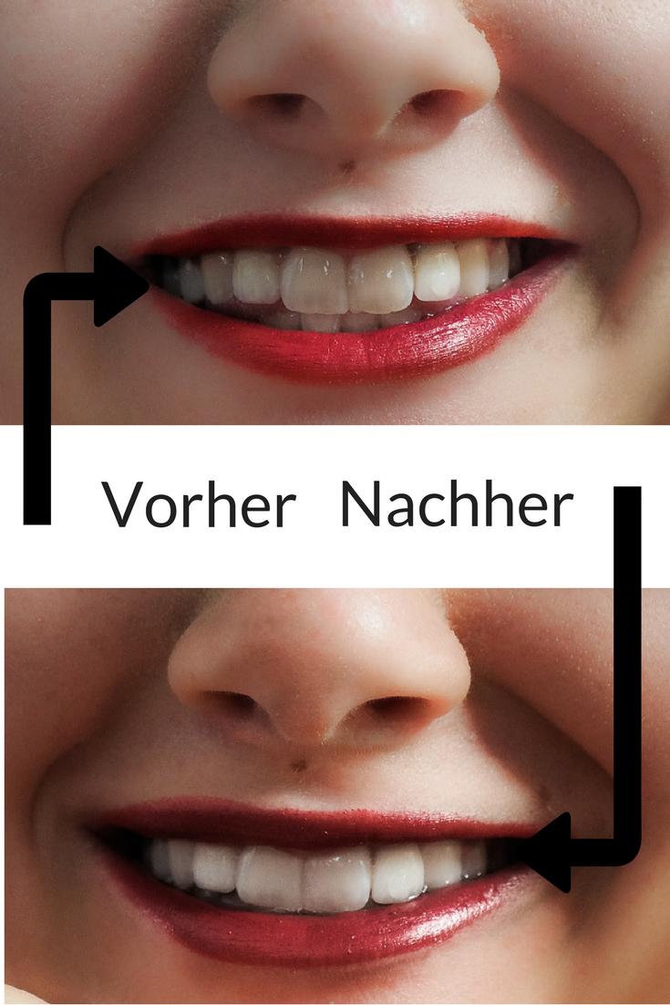 Weiße Zähne dank Aktivkohle Zahnpasta. Das Zahnpastalächeln aus der Werbung bekommt man nur mit viel Chemie? Wie ich mit Aktivkohle Zahnpasta auf natürliche Weise weißere Zähne bekommen habe. Schwarze Zahnpasta für weiße Zähne? Aber klar doch! #aktivkohle #charcoal #schwarzezahnpasta #aktivkohlezahnpasta